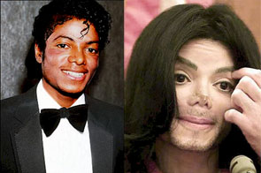 Michael Jackson to Undergo Surgery to Reverse Whiteness ...